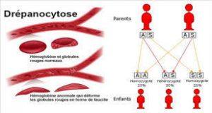La drépanocytose : 1ère maladie génétique